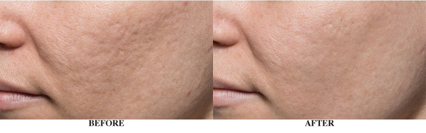 Before & After Bellafil Treatment Irvine Orange County