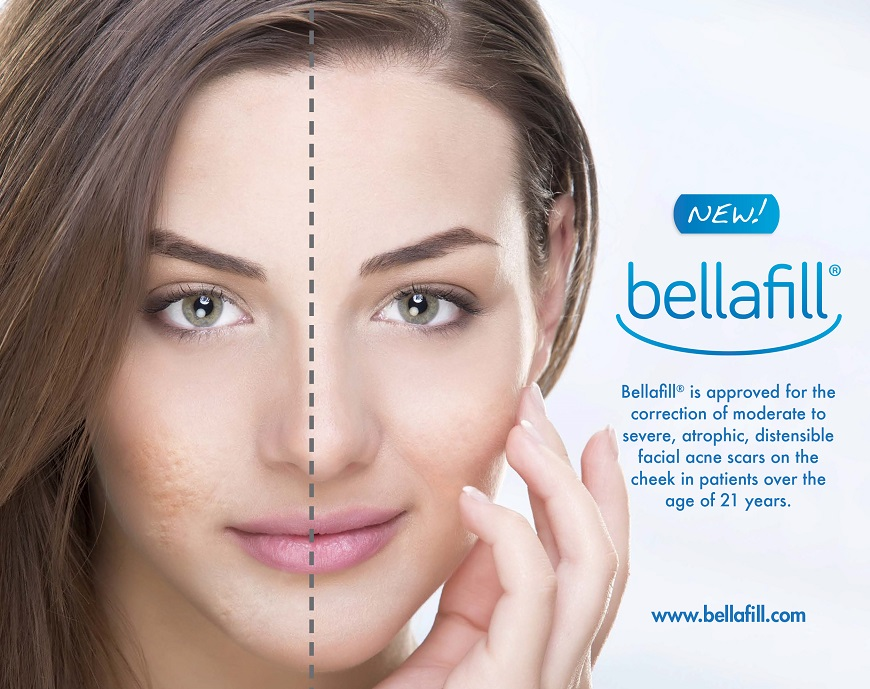 Bellafil Treatment Irvine Orange County
