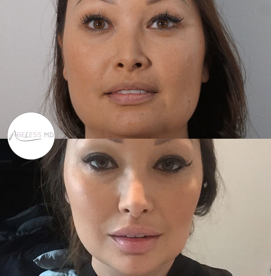 Before & After Irvine Jaw Slimming Injections