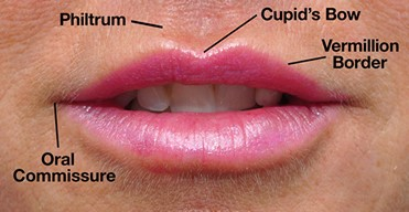 Lip Fillers - Ageless MD