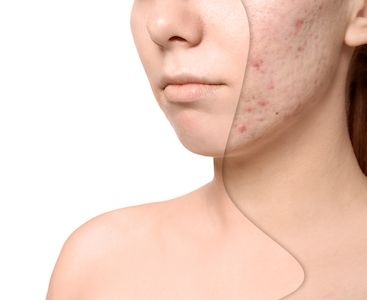 Irvine Acne Scar Treatment