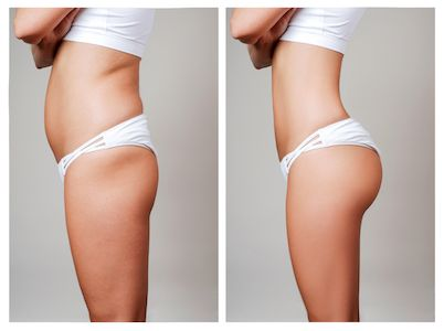 Newport Beach Sculptra Butt Lift Irvine