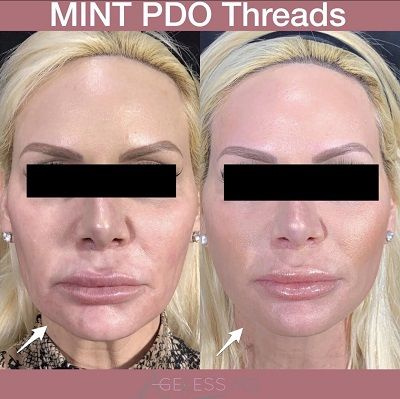 MINT PDO Threadlift - Ageless MD
