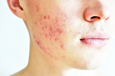 The Latest in Orange County Acne Scar Treatment