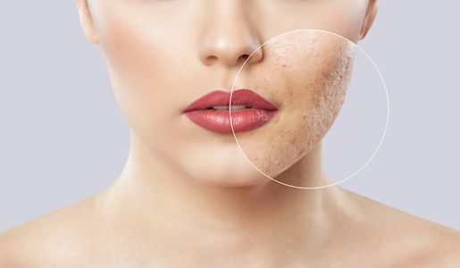 Orange County Acne Scar Treatment