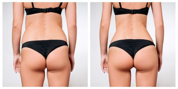 Tustin Sculptra Butt Lift
