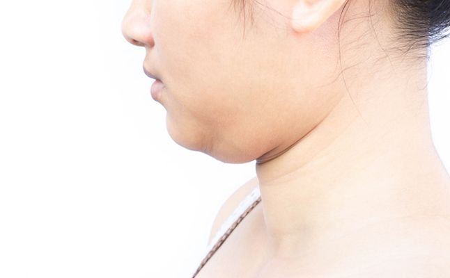 Newport Beach Kybella Takes on Chin Fat