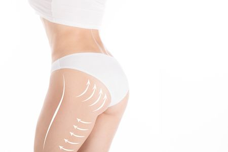 Irvine Sculptra Butt Lift
