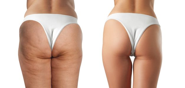 This Irvine Sculptra Butt Lift Works Wonders
