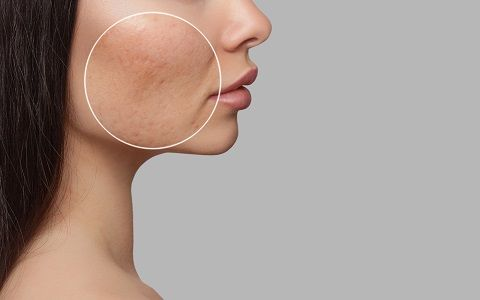 Best Orange County Acne Scar Treatment Tustin