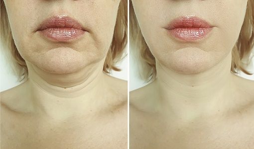 Newport Beach Kybella For Double Chin