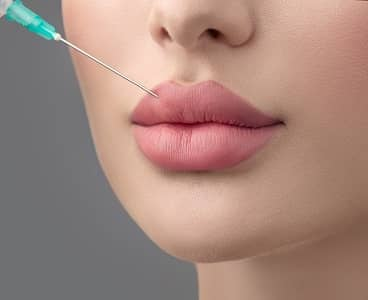 Newport Beach Lip Fillers