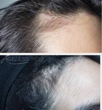 Hair Loss Treatment with Exosomes